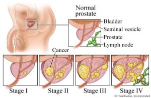 Stages-of-Prostate-Cancer